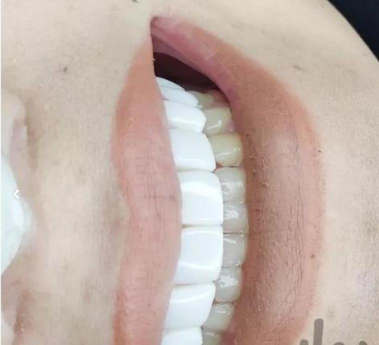 کامپوزیت دندان. دندانپزشکی. زیبایی