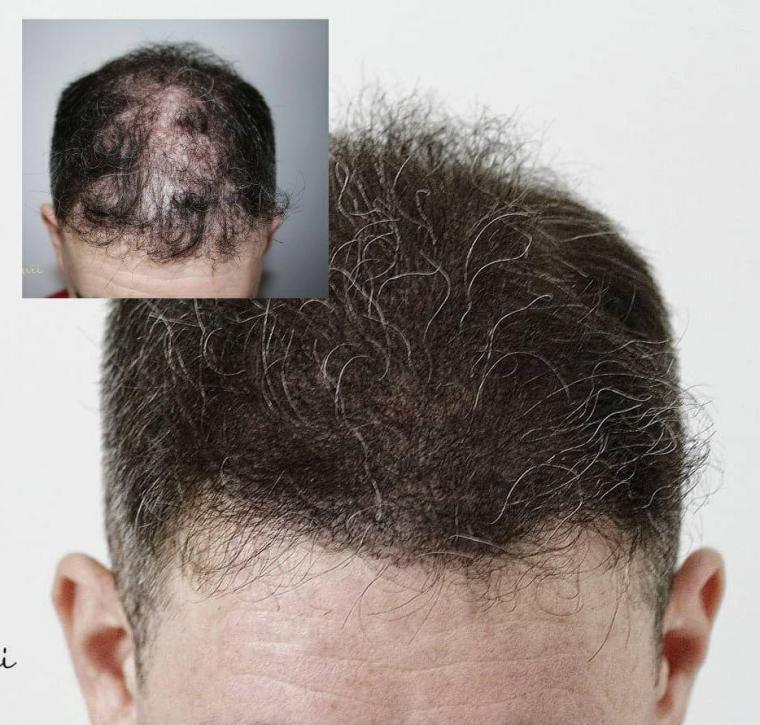 پرپشتی مو در یک جلسه
